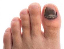 Típica uña negra de pie de corredor.