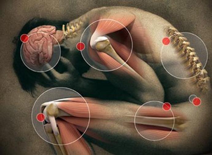 ¿Cómo prevenir lesiones tendinomusculares?
