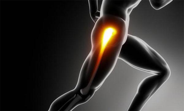 causas de dolor en la ingle al correr