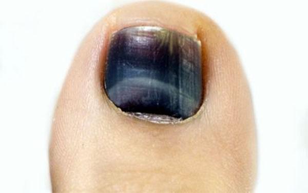 Cómo evitar las uñas negras en corredores