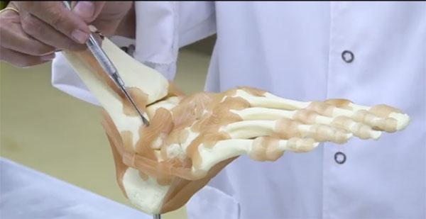 Descubren un ligamento en el tobillo que explica porqué algunos esguinces siguen doliendo después de curarse