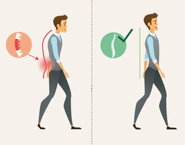 Las emociones pueden causar dolor de espalda