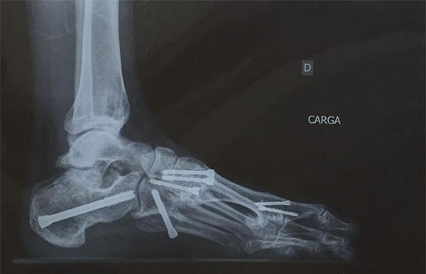 ¿Qué es un pie catastrófico?