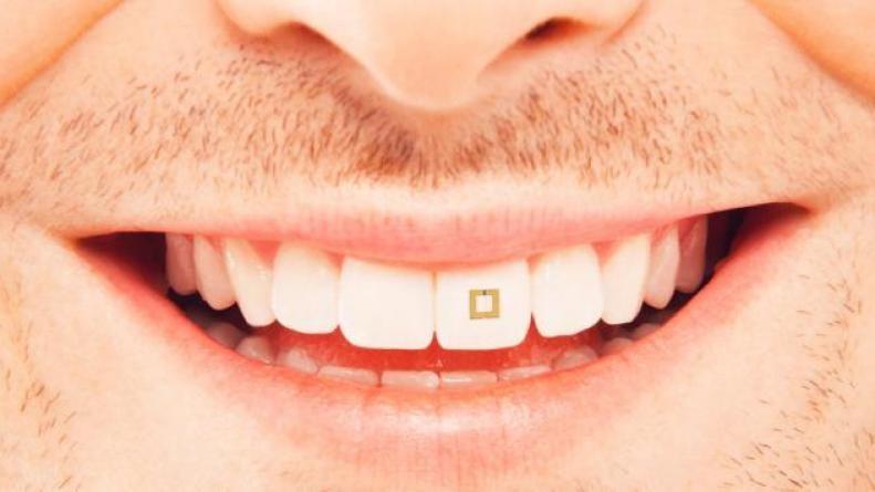 Inventan un sensor para los dientes que rastrea qué comemos