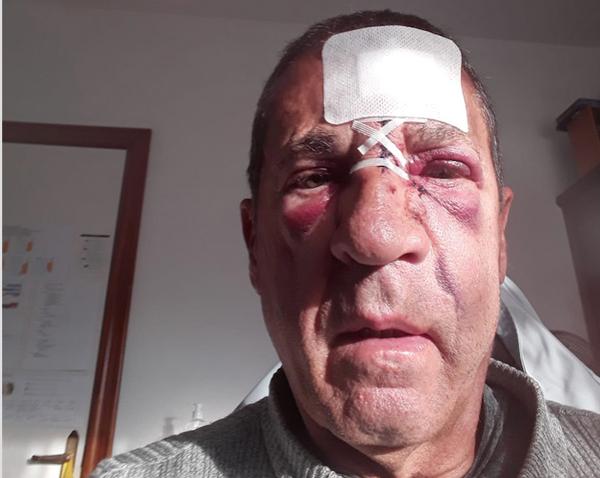 Jordi Lamarca se fractura el tabique nasal y el maxilar anterior en una 'clavada' con su patín a vela