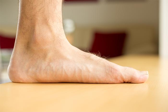Running con pies planos: las lesiones más comunes y cómo prevenirlas