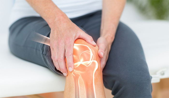 Artrosis de rodilla: Qué la causa y posibles tratamientos
